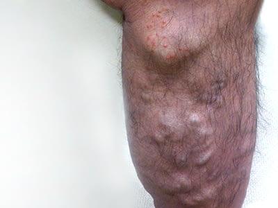 大伏在静脈タイプ(皮膚炎併発)